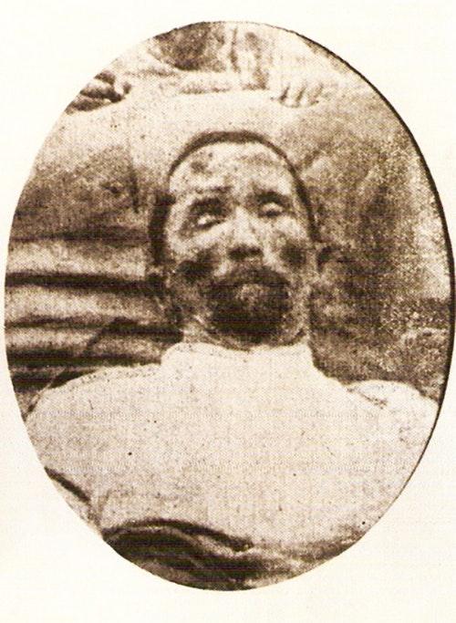 Photo of Kornilov's body