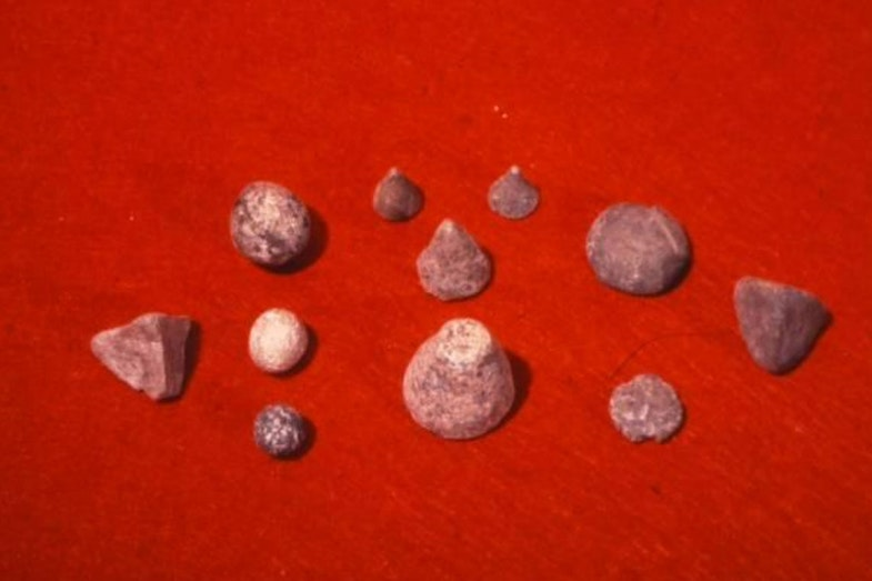 Tokens from Jarmo, Iraq, 6500 BC