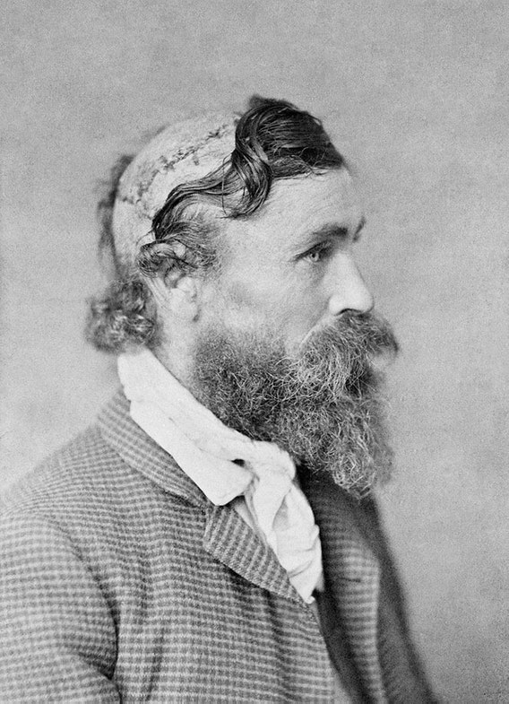 Survivor Robert McGee was scalped as a child in 1864 by Lakota Chief Little Turtle